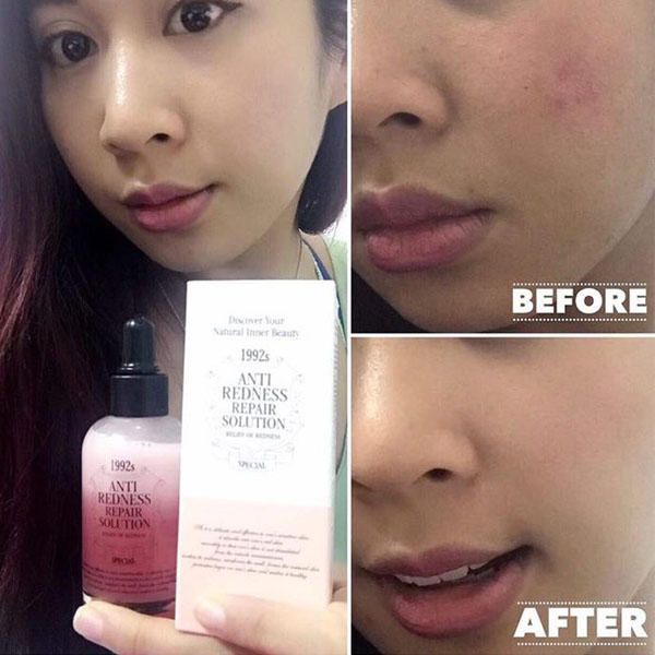 Anti-Redness Repair Solution